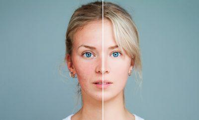cum maschezi acneea